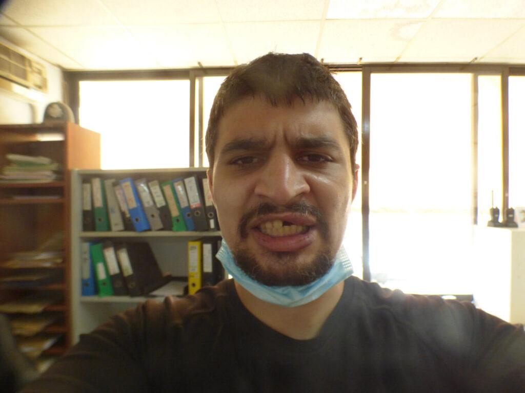 Απόπειρα δολοφονίας σε βάρος δημοσιογράφου στη Χαλκίδα: «Από τύχη είμαι ζωντανός….»