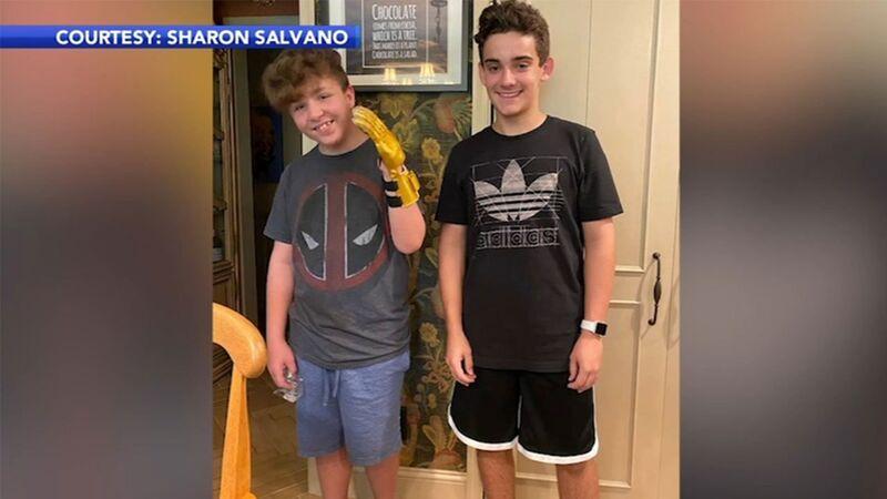 14χρονος κατασκευάζει ρομποτικό προσθετικό χέρι για το φίλο του