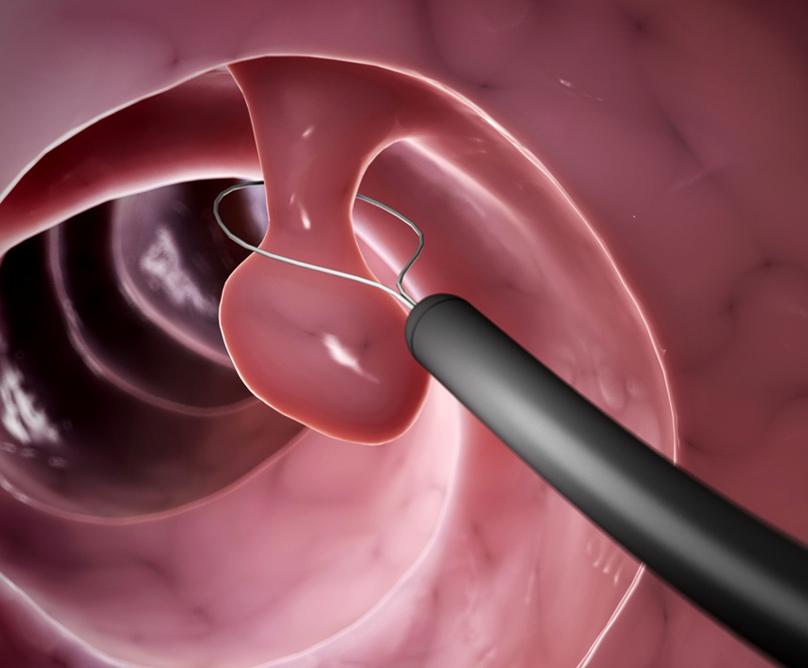 Κολονοσκόπηση, για την πρόληψη του καρκίνου του παχέος εντέρου